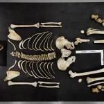 L'anthropologue médico-légal a disposé le squelette sur la table pour une analyse minutieuse des os. © Musée d'archéologie et d'ethnologie de l'Université Simon Fraser, 2010. Tous droits réservés.
